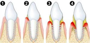 Entwicklung einer Paradontitis ohne Zahnfleischbehandlung